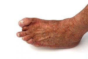 Diabetic Foot Care Center For Foot Care