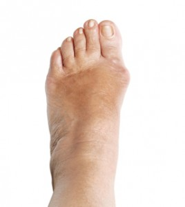 Why a Bunion Can Affect Your Shoe Fit and What You Can Do