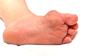 What's the Difference Between Bunions and Corns?