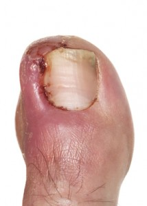 Treating Ingrown Toenails – DIY or Go to a Professional?