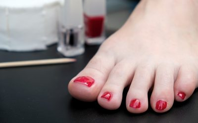Is Never Removing Nail Polish Unhealthy for Toenails?